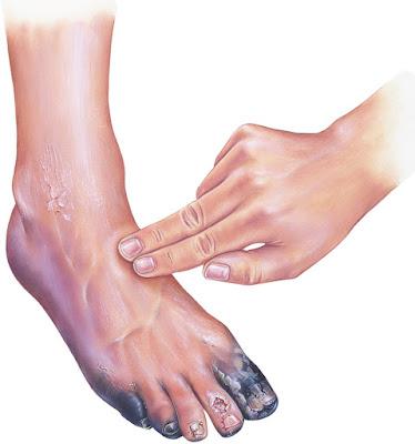 symptoms of peripheral vascular disease